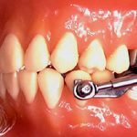 Herbst Appliance Resler Orthodontics